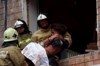 Фото обгоревших людей после пожара